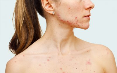 What Can You Do About Acne?