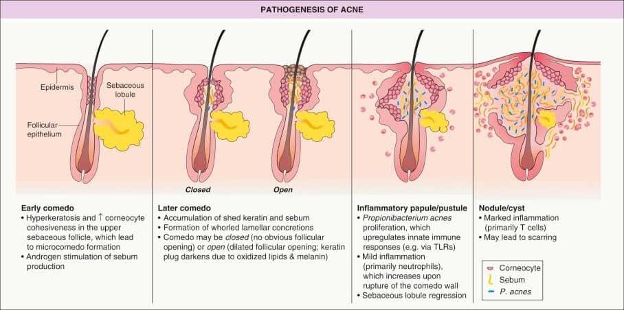 Pathogenesis of Acne